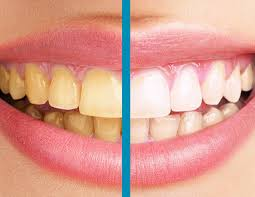 Dişler Neden Sararır? Dişlerin Sararmasının Etkenleri